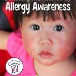 Understanding Baby Food Allergies. Food Allergy Awareness